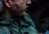 Dijon: Un adolescent reçoit un tir de flash-ball en plein visage